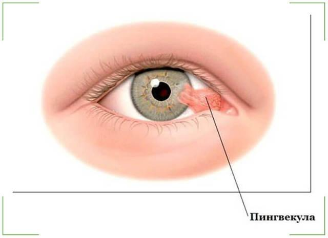 Пингвекула глаза: лечение, симптомы патологии и профилактика