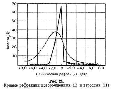 Авторефрактометрия - расшифровка результатов, особенности процедуры