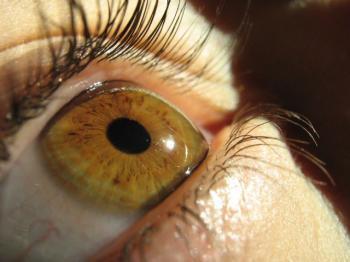 Сульфацил натрия – капли глазные: описание, состав, инструкция