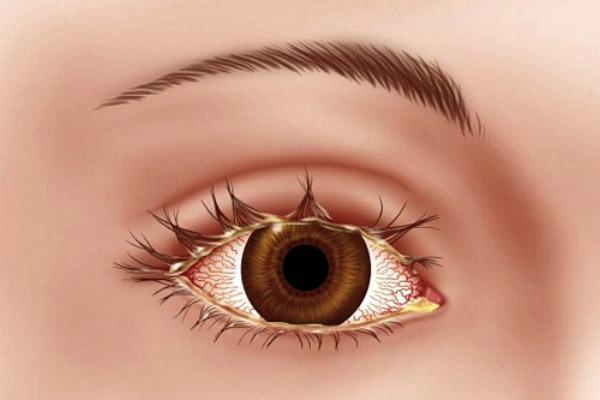 Блефароконъюнктивит глаз и его лечение, обзор методов