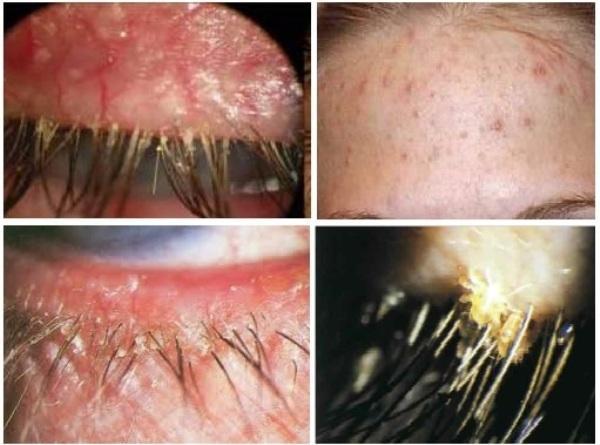 Демодекоз глаз - симптомы и лечение, меры профилактики