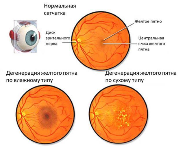 Песок в глазах (рябь в глазах) - что это значит - возможные причины и лечение