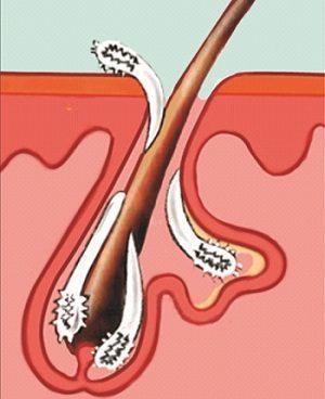 Ресничный клещ - симптомы и лечение, меры профилактики