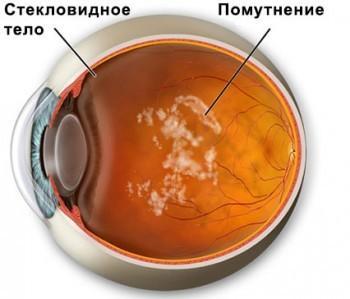 Черные мушки перед глазами - причины и лечение, меры профилактики
