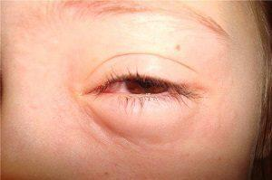 Глазные капли от сухости и усталости глаз - выбираем лучшие!