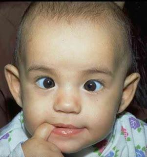 Склеропластика глаз у детей - показания, подготовка и проведение операции
