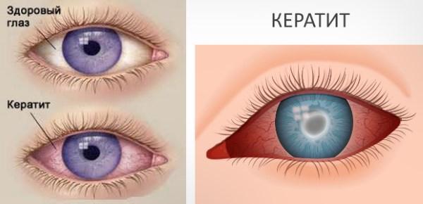 Кератит глаза - виды, причины и симптомы, методы лечения