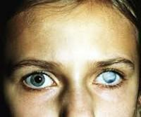 Бельмо на глазу у человека - причины, диагностика и методы лечения!