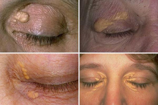 Ксантелазма век – лечение различными методами и профилактика!
