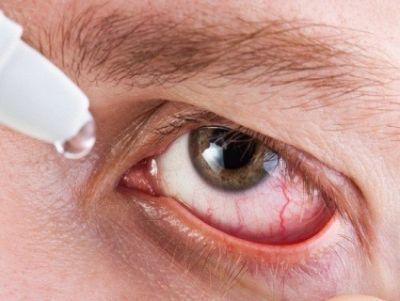Глазные капли Диклофенак: описание, свойства, аналоги, цены