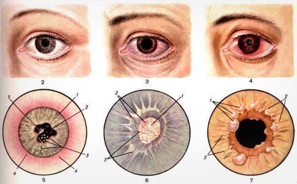 Иридоциклит, глазное заболевание - что это и как его лечить?