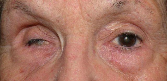 Глазные капли Макситрол: состав, применение, спектр действия