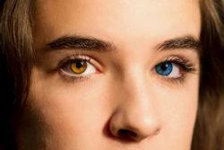 Гетерохромия глаз у людей - что это, причины появления и лечение