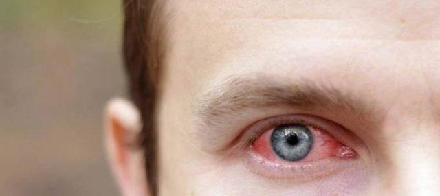 Кровоизлияние в глаз - причины и лечение, профилактика