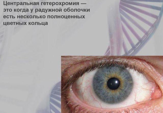 Частичная гетерохромия глаз у людей