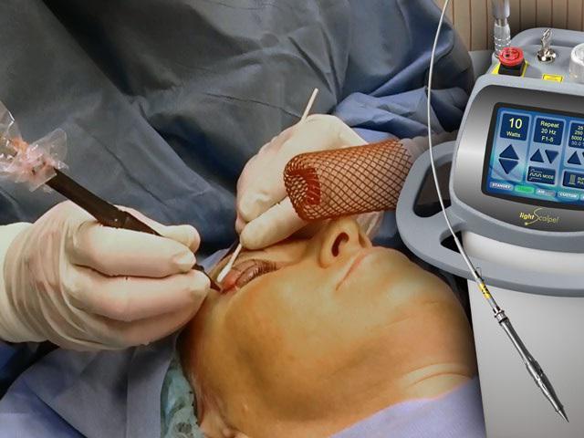 Лазерная блефаропластика - описание процедуры, показания, восстановление