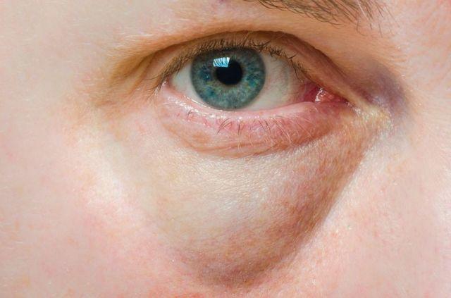 Отек под глазом с одной стороны: причины и методы лечения!