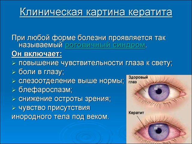 Корнерегель для глаз - описание, инструкция, цены и аналоги!