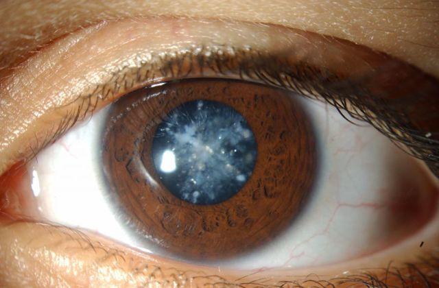 Скотома глаза - что это такое: причины, симптомы, лечение