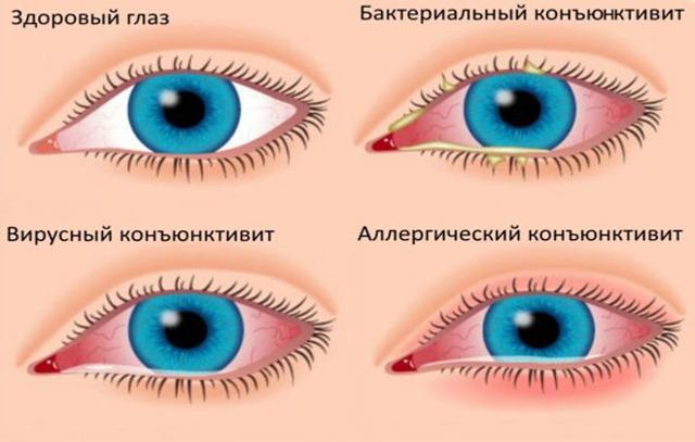 Почему лопаются капилляры в глазах - причины и лечение!