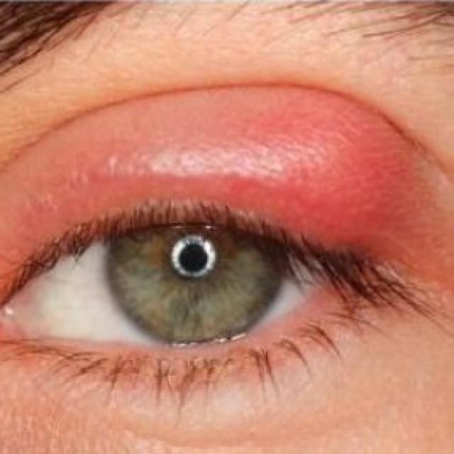 Что такое ячмень на глазу - причины, симптомы, лечение и профилактика