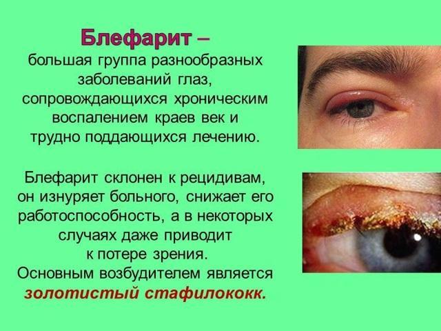 Блефарит - что это такое, симптомы и лечение, профилактика