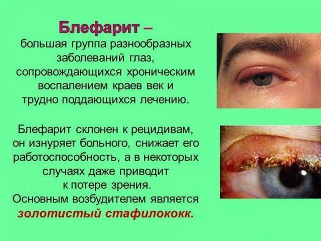 Болят глаза: причины, возможные заболевания, последствия