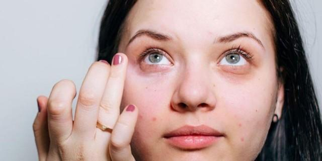 Бадяга от синяков под глазами - как правильно пользоваться?