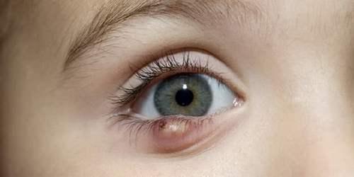 Ячмень на глазу - лечение быстро у взрослого различными методами!