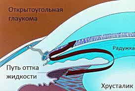 Глаукома глаза: что это такое, лечение и симптомы