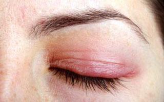 Почему отекают глаза по утрам (верхние веки): причины, диагностика и лечение!