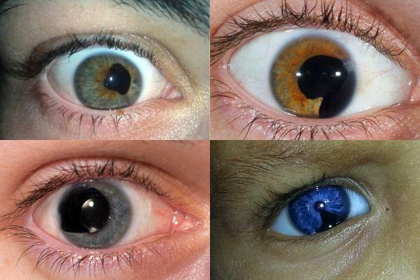 Колобома радужки глаза - что это, симптомы и методы лечения
