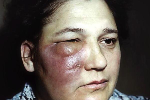 Гноится глаз у взрослого - лечение препаратами и народными средствами!