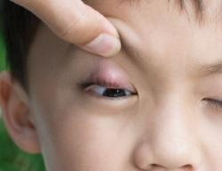Как избавиться от ячменя на глазу быстро? Лучшие способы!