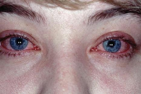 Глазные капли Кромофарм - инструкция по применению, аналоги и отзывы