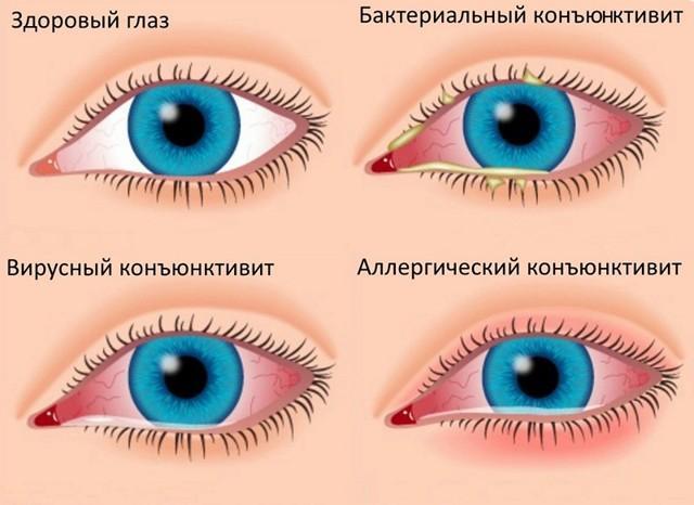 Левомицетиновые капли для глаз для детей - когда и как применять?