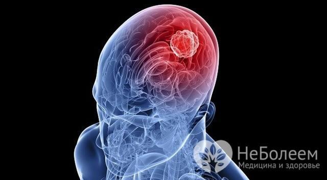 Гипертрихоз ушной раковины: причины заболевания