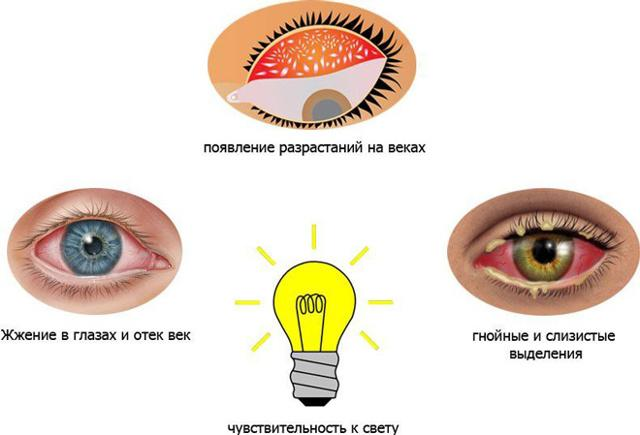 Унифлокс (ушные капли): инструкция по применению