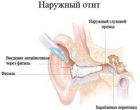 Отит у грудничка: причины, симптомы, лечение