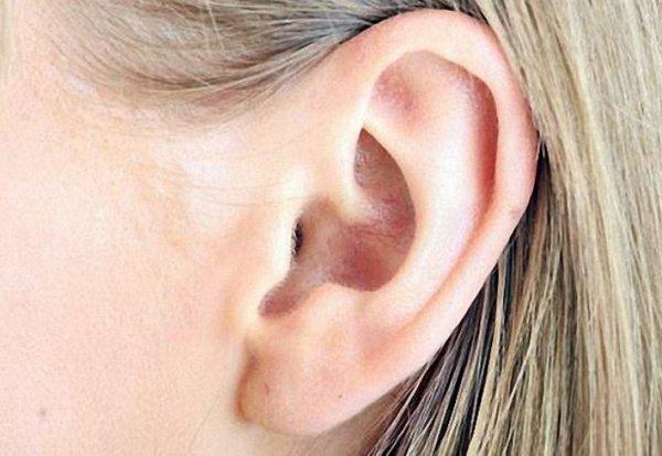 Перхоть в ушах: как избавиться