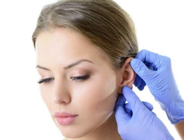 Оттопыренные уши: как избавиться от лопоухости?