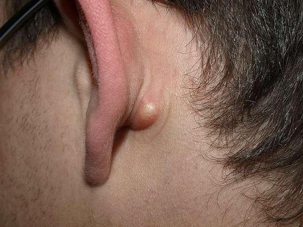 Жировик за ухом: причины и лечение