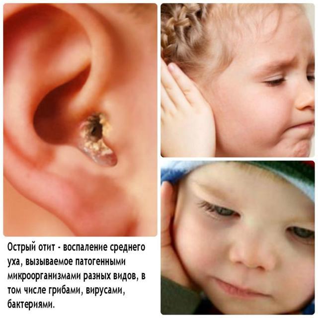 Температура при отите у детей и взрослых: чем опасна