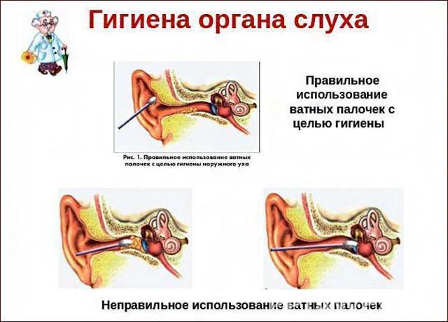 Гигиена слуха: основные правила гигиены ушей