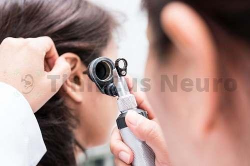 Тиннитус: симптомы и лечение шума в ушах