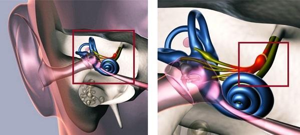 Вестибулярный аппарат: нарушения, симптомы, лечение