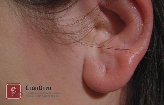 Шишка на мочке уха: что это и как лечить?