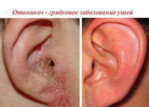 Грибковый отит: симптомы и лечение