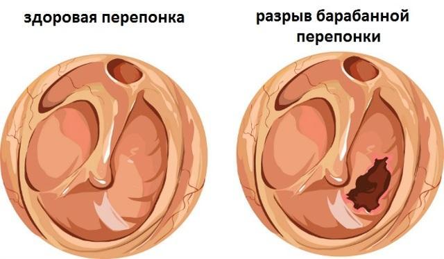 Капли ушные Полидекса: инструкция по применению