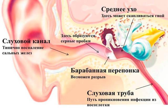 Лекарства от боли в ушах: какие лучше?